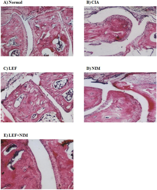Histopathological assessment of articular damage.Mice with CIA were treated with leflunomide (LEF: Panel C), nimesulide (NIM: Panel D), or leflunomide+nimesulide (LEF+NIM: Panel E) for 40 days and the H&E stained joints were compared with untreated arthritic (CIA: Panel B) and normal mice (Panel A). Pathological findings were compared in terms of synovial hyperplasia (S), articular irregularity (A), narrowing of joint space (N), and lymphocytic infiltration (M).