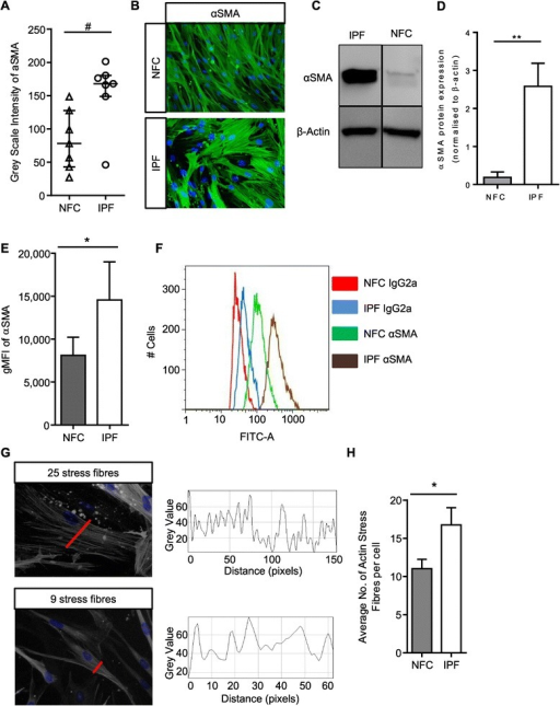 IPF myofibroblasts have increased basal αSMA expression and stress fibre formation. (A) HLMF αSMA expression was measured by grey scale intensity in n = 7 NFC and n = 7 IPF donors; a minimum of 10 random cells were measured in one field for each donor. IPF HLMF's had significantly higher intensity of αSMA in comparison to NFC donors P = 0.0111, Mann–Whitney. (B) Immunofluorescent images displaying αSMA staining and actin stress fibers in the cytoplasmic matrix. (C and D) Western blot analysis of αSMA expression in NFC (n = 3) and IPF-derived (n = 3) HLMFs, **P = 0.0026. The detected band was at the correct molecular weight of 42 kDa for αSMA (E and F) the mean fluorescent intensity (MFI) of αSMA expression assessed by flow cytometry. IPF (n = 4) donors showed significantly higher expression than NFC (n = 4), P = 0.0159. (G) Illustration of how the αSMA stress fibres were assessed. A macro recorded the number of fibres per individual cell. Each fibre represents a peak in grey value and the number of peaks equating to the number of stress fibres was then counted per cell. A minimum of 10 cells were measured per donor. (H) The results show that the number of actin stress fibres were significantly higher in IPF (n = 8) donors in comparison to NFC (n = 8) donors P = 0.0437 (Un-paired t-test). Results are presented as median ± IQR, #P < 0.05 (Mann–Whitney), or mean ± SEM *P < 0.05, **P < 0.01 (Unpaired t-test).