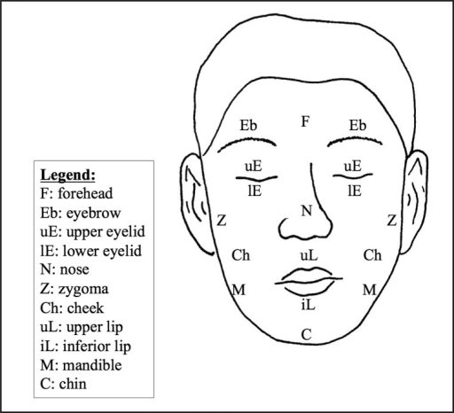 Modified MCFONTZL classification of facial lacerations [24].