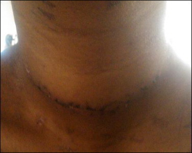 Healed surgical scar of the patient on the 12th post-operative day.