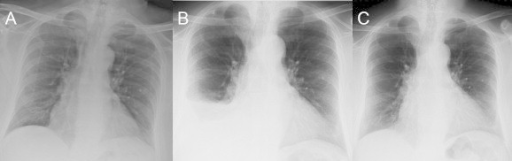 CXR series: (A) CXR 2 years prior to presentation and prior to olanzapine therapy, (B) CXR at presentation, (C) CXR 6 months after olanzapine withdrawal.