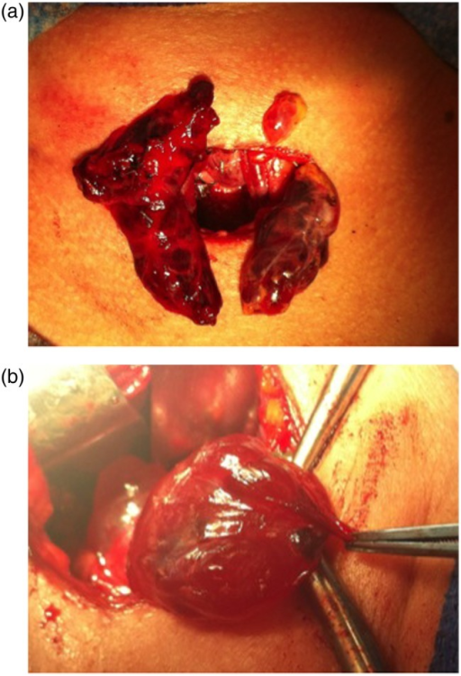 (a) Intraoperative photograph showing cystic parathyroid glands. (b) Cystic parathyroid glands.