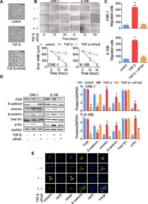 TGF-β-induced EMT was reversed by Flot2 silencing(A) TGF-β-induced CNE-1 NPC cell scattering and morphologic changes were reversed by siFlot2. Scale bar = 50 μm. (B) Wound-healing assay and (C) Transwell assay of NPC cells treated with TGF-β or siFlot2. (D) TGF-β-induced EMT maker (E-cadherin, vimentin and β-catenin) alterations and Src phosphorylation was reversed by siFlot2. (E) Immunofluorescence staining showed the E-cadherin and vimentin expressions changed by TGF-β and siFlot2 in CNE-1 cells. # P < 0.01, + P < 0.001.