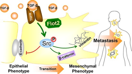 Summarizing diagram of this studySummarizing diagram of this study. Flot2 is indispensable for Src phosphorylation in TGF-β signaling. Silencing Flot2 reverses the TGF-β-induced EMT in NPC cells by suppressing Src activation. By this, E-cadherin expression is upregulated and vimentin and β-catenin expressions are downregulated. These findings answer our clinical observations why Flot2 elevation is associated with more lymphatic as well as distant metastasis, and consequently lead to adverse survival outcomes.