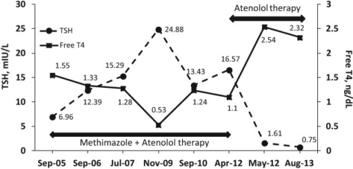 Time course of TSH and free T4 levels during methimazole therapy and after its discontinuation.
