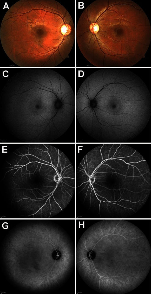 Fundus photographs, short-wavelength autofluorescence image, and fluorescein and indocyanine green angiograms from a patient with peripheral cone dystrophy (PCD). Fundus photographs (a, b), short-wavelength autofluorescence (c, d), fluorescein angiograms (e, f), and indocyanine green angiograms (g, h) are shown. Results from the right eye (a, c, e, g) and left eye (b, d, f, h) are shown. Fundus photographs show no abnormal findings in both maculas. Mild temporal pallor of the optic disks can be seen. Short-wavelength autofluorescence showed a subtle parafoveal hyperfluorescence. Mid-phase fluorescein and indocyanine green angiograms do not show any hyper- or hypofluorescent regions