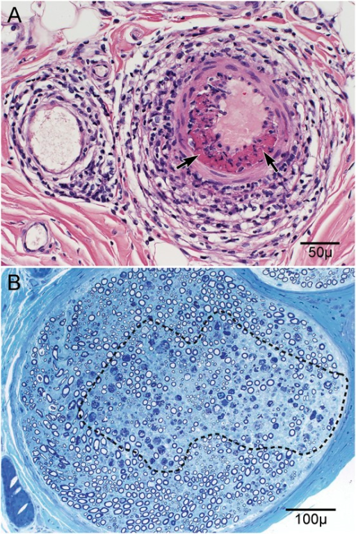 Patient 1 radial nerve biopsy(A) Hematoxylin & eosin stain of radial nerve demonstrates epineurial nerve large arteriole necrotizing vasculitis. Note the prominent inflammatory cell infiltrate infiltrating and disrupting all layers of the arteriolar wall and the fibrinoid necrosis (arrows). (B) Methylene blue stain of radial nerve demonstrates myelinated fiber degeneration in the center of the fascicle that is typical of ischemic changes (outlined).
