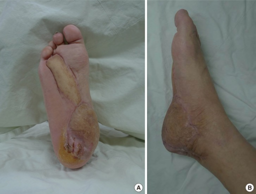 (A, B) Result at postoperative 10 months. Both flaps completely survived and withstood the daily stress of walking. The normal foot contour was also preserved.