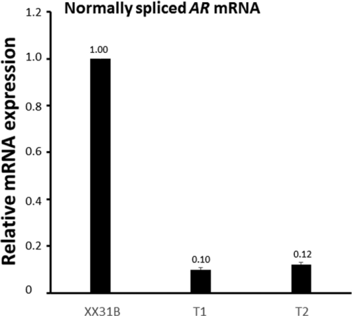 Expression of the normally spliced AR mRNA in fibroblasts.The normally spliced AR mRNA was quantified by using primers specific for the normally-spliced variant from RNA extracted from vehicle-treated (0.1% ethanol) patient-derived (T1 and T2) and control (XX31B) fibroblasts. GAPDH was used as the reference gene. The expression in patient samples T1 and T2 was normalized to control sample XX31B vehicle treatment. The bars represent the mean ± SD of 3 independent samples.