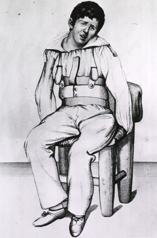 <p>A man is sitting in a chair; he is wearing a device that is designed to inhibit mobility.</p>
