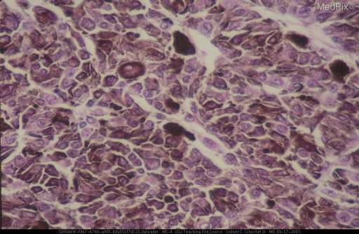 Higher magnification showed most of the nuclei to be vesicular with prominent nucleoli.  Occasional epithelioid cells were also present.