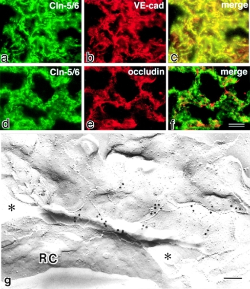 Localization of claudin-5/TMVCF in the lung. (a–f) Frozen sections of the lung were double stained with anti–claudin-5/6 pAb (a) and anti–VE-cadherin mAb (b), or anti–claudin-5/6 pAb (d) and antioccludin mAb (e). Since anti–claudin-6 pAb yielded no signals (data not shown), the anti–claudin-5/6 pAb staining can be considered to represent the distribution of claudin-5/TMVCF. Merged images (c and f) then revealed that claudin-5/TMVCF was precisely colocalized with VE-cadherin and that the claudin-5/TMVCF signals were complementary to the occludin signals. Considering that VE-cadherin and occludin were expressed exclusively in endothelial and epithelial cells, respectively, in the lungs, these findings indicated that the expression of claudin-5/TMVCF was restricted to endothelial cells. (g) Freeze–fracture replicas of the lung were labeled with anti–claudin-5/6 pAb. Note the specific labeling on the TJ strands of endothelial cells, which delineated the capillary lumen (indicated by asterisks). RC, erythrocytes; Cln, claudin; cad, cadherin. Bars: 20 μm in a–f (f); 100 nm (g).