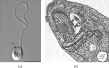 (a) Diferential interference contrast (DIC) microscopy  and (b) transmission electron microscopy  showing the presence of a prominent contractile vacuole (arrows) near the flagellar pocket after treatment of L. amazonensis promastigotes with quinuclidine inhibitors. In the left panel it is possible to observe a rounded and swollen parasite that probably indicates osmotic changes due alterations in the plasma membrane's permeability. F, flagellum; K, kinetoplast. Bars, 5 μm and 0.5 μm, respectively.