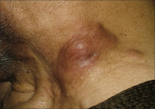 Two solid, erythematous, infiltrated, well-circumscribed nodular lesions on the left side of the neck
