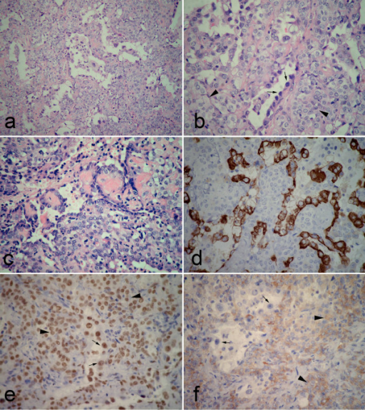 Postoperative photomicrographs of lesion in PSH portion. (a) the tumor was composed of sheets of round cells with scattered surface cuboidal cells forming small tubules. (b) The surface cuboidal cells demonstrated vacuolated and foamy cytoplasm with focal mild nuclear atypia (black arrow). The round cells showed uniform, medium-size polygonal nuclei with moderate amounts of pale, eosinophilic or clear cytoplasm (black arrowhead). (c) In some area, papillary pattern with hyalinizing stalks could be obsreved. Both surface cuboidal cells and round cells could be found in this structure. (d) Immunohistochemically, positivity of surface cuboidal cells, but negativity of round cells for pancytokeratin was found in tumor. (e) Both surface (black arrow) and round cells (black arrowhead) showed strongly positive for TTF-1. (f) A focal weak positivity of round cells (black arrowhead) for synaptophysin was observed in this portion, but the surface cells (black arrow) showed negative for Syn. (a, H&E staining with original magnification of 200 ×; b-c, H&E staining with original magnification of 400 ×; d-f, immunohistochemical staining with original magnification of 400 ×).