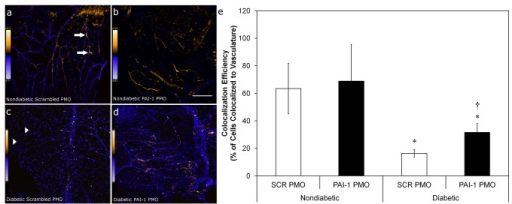 PAI-1 inhibition with PMO increases diabetic CD34+ cell homing to and association with vasculature in an acute I/R model.CD34+ cells isolated from diabetic (n=8) or age- and sex-matched normal (n=4) donors were exposed to either scrambled (SCR) or PAI-1-specific PMO for 16hr prior to intravitreous injection 7 days post ischemic insult. Eyes were harvested 2 days later and processed for immunofluorescence and data was collected using laser scanning confocal microscopy. Panels (a-d) are typical fields that show calculated co-localization of CD34+ cells with retinal vasculature using Intensity Correlation Analysis (Mander's coefiicient) and given false color to indicate the degree of co-localization probability (warmer colors = higher probability). Scale bar in (b) also applies to (a) and is 100 mm. Scale bar in (d) also applies to (c) and is 150 mm. (e) represents co-localization efficiency. Arrows indicate exogenously added cells that have not co-localized to vasculature (best seen in Panel C), while arrowheads (Panel A) indicate areas where exogenously added cells co-localize strongly (warm colors) with vessels. * = p<0.05 vs. non-diabetic cells with the same pre-treatment. † = p<0.05 versus SCR PMO with diabetic cells.