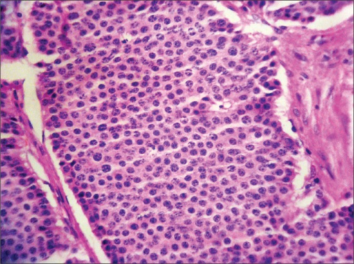 Photomicrograph showing the typical salt & pepper chromatin of a carcinoid (Hematoxylin & Eosin x40).