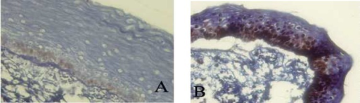 Immunohistochemical expression of p53 (A) and PCNA (B) in keratocystic odontogenic tumor (400X).