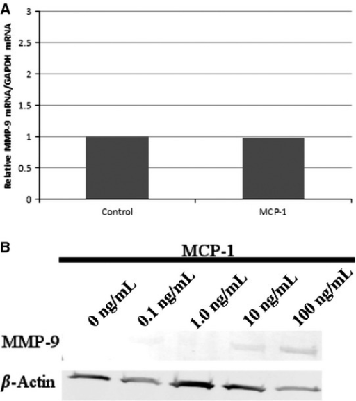 Effect of MCP‐1 on MMP‐9 mRNA and protein in PF. (A) Real‐time qRT‐PCR. PF were untreated or treated overnight with MCP‐1 (10 ng/mL), and changes in MMP‐9 mRNA were determined by qRT‐PCR. No change in MMP‐9 mRNA was noted. (B) Immunoblot. PF were treated overnight with MCP‐1 (0–100 ng/mL), cells were washed, and the supernatant was removed. Changes in MMP‐9 protein from PF lysates were detected by immunoblot. MMP‐9 protein bands at 92 KDa were detected only after treatment with MCP‐1 (10 or 100 ng/mL).