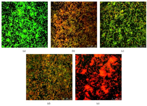 Confocal laser scanning microscopy images of P. gingivalis biofilms on titanium discs (oil, ×63). (a) Untreated P. gingivalis biofilm (control); (b) P. gingivalis biofilm treated with 0.1% chlorhexidine (CHX); (c) P. gingivalis biofilm treated with 0.125 mg/mL Pac-525; (d) P. gingivalis biofilm treated with 0.25 mg/mL Pac-525; and (e) P. gingivalis biofilm treated with 0.5 mg/mL Pac-525.