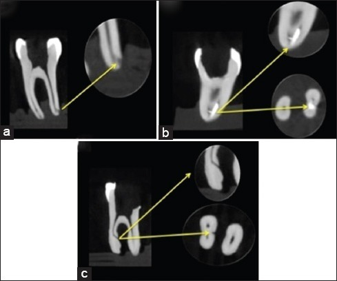 Procedural errors detected using cone beam computed tomography images; canal transportation (a), instrument fracture, (b) and perforation (c).