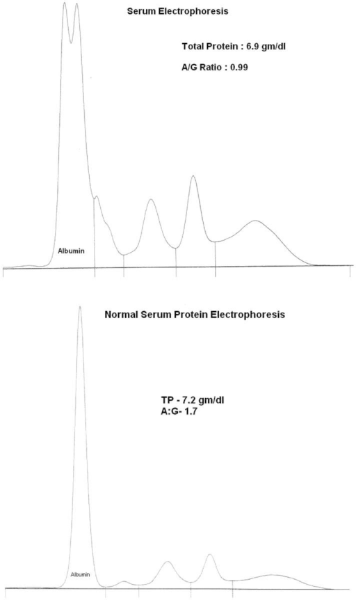 The top serum protein electrophoresis shows the presence of bisalbuminemia. Below is a normal serum protein electrophoresis.