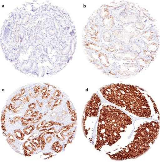 Representative images of TYMS immunostainings in prostate cancer(a) negative staining, (b) weak staining, (c) moderate staining, (d) strong staining.