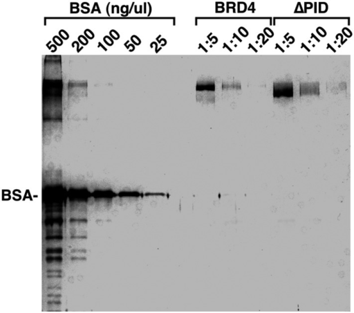 Examination of the purity and concentrations of WT and ∆PID BRD4 used in the CDK9 kinase assay.DOI:http://dx.doi.org/10.7554/eLife.06535.015