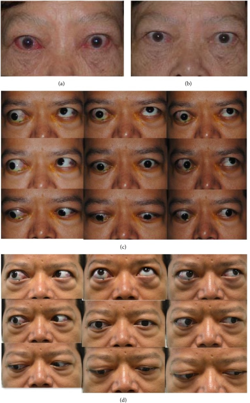 Representative example of patients status at baseline and at 24 wk after the start of treatment. (a) (baseline) and (b) (24 wk) showed that soft tissue involvements and redness of conjunctiva were remarkably improved in a female at 24 wk. (c) (baseline) and (d) (24 wk) showed the improvement of eyelid aperture, lid lag, and elevation in a male treated by doxycycline.