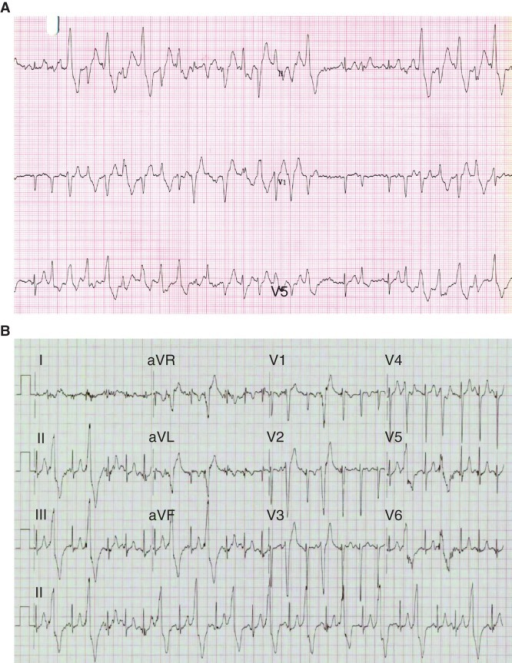 Rhythm strips of the proband and her daughter. A: Three lead rhythm strip (25 mm/s, 10 mm/mV) taken during exercise of the female proband (II-3), at age 29 years following presentation with exertional syncope. Two minutes into stage 1 of the Bruce protocol, there are runs of polymorphic ventricular ectopy and ventricular tachycardia interrupted with occasional sinus beats. B: 12 lead rhythm strip (25 mm/s, 10 mm/mV) taken during exercise of an asymptomatic 7-year-old daughter of the proband (III-3) in stage 3, 9 min into the Bruce protocol. Frequent left bundle branch, inferior axis monomorphic ventricular extra beats develop into bigeminy.