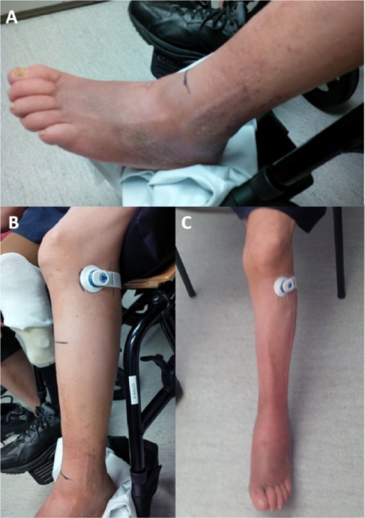 Photographs before (A and B) and following (C) a 4-week course of transcutaneous electrical nerve stimulation using the geko device to treat left leg below-knee swelling and pain in a 70-year-old man. Placement of the device over the common peroneal nerve (B and C) activated the short head of the biceps femoris muscle.