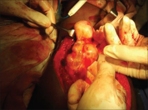 Intraoperative finding