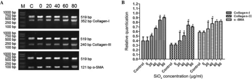 mRNA expression levels of collagen I, collagen III and α-SMA in cFbs treated with the supernatant of AM treated with various concentrations of SiO2. The cFbs were treated with the supernatant of AM treated with SiO2 at concentrations of 0, 20, 40, 60 or 80 µg/ml for 24 h, and the control group was not treated. (A) The cFbs were harvested, total RNA was extracted and the mRNA expression levels were determined by reverse transcription-quantitative polymerase chain reaction. (B) The mRNA expression levels of collagen I, collagen III and α-SMA were quantified and normalized relative to internal β-actin mRNA. The bands were quantified by densitometric analysis. Values are expressed as the mean ± standard deviation from three independent experiments (n=6). *P<0.01, vs. the control group. cFbs, circulating fibrocytes; α-SMA, α smooth muscle actin; SiO2, crystalline silica; AM, alveolar macrophages.
