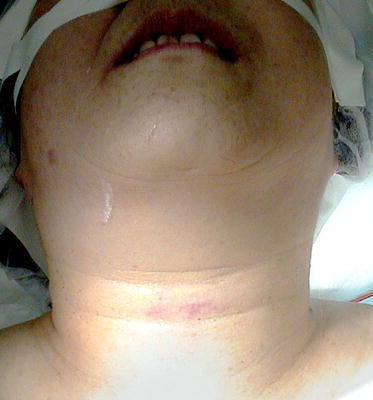 Preoperative image of the patients neck. Erythema can be noted at the trauma site at the level of the thyroid cartilage