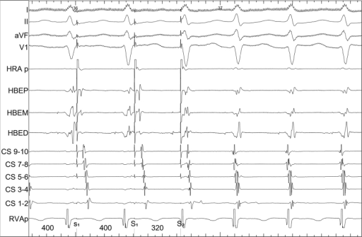 The above narrow complex tachycardia was reproducibly induced following an AH jump during an EP study. The characteristics of the tachycardia included a 1:1 V-A relationship, a negative V-A time, concentric atrial activation, and entrainment intervals consistent with typical AVNRT, thereby confirming the suspected diagnosis. Following slow pathway modification the tachycardia was no longer inducible. I, II, aVF, and V1 = surface electrograms; HRA p = high right atrial intracardiac electrogram; HBEP, HBEM, and HBED = His intracardiac electrograms (proximal, mid, and distal); CS 9–10, CS 7–8, CS 5–6, CS 3–4, and CS 1–2 = coronary sinus intracardiac electrograms (proximal to distal); RVAp = right ventricular apical intracardiac electrogram.