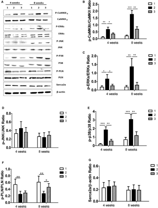 Therapeutic effect of CPZ in TAC‐induced cardiac hypertrophy by inhibiting the CaMKIIδ–MAPK signaling pathway in vivo. A, Expression of proteins were analyzed by Western blotting for CaMKIIδ, ERKs, p38, JNK, PLN, and Serca2a in the sham‐operated group (panel 1), the TAC group (panel 2), and the group treated with CPZ 2.5 mg/kg per day (panel 3). In the TAC group at 4 or 8 weeks after TAC operation, β‐actin was used as an internal control. Relative expression ratios of p‐CaMKIIδ to CaMKIIδ (B), p‐ERKs to ERKs(C), p‐JNK to JNK(D), p‐p38 to p38 (E), p‐PLN to PLN (F), and Serac2a to β‐actin (G) in left ventricle tissue from the above groups (6 independent experiments per group) are shown. *P<0.05, **P<0.01, ***P<0.001. CaMKII indicates calmodulin‐dependent protein kinase II; CPZ, capsazepine; ERK, extracellular signal–regulated kinase; JNK, c‐Jun N‐terminal kinase; p, phosphorylated; p, phosphorylated; PLN, phospholamban; TAC, transverse aorta constriction.