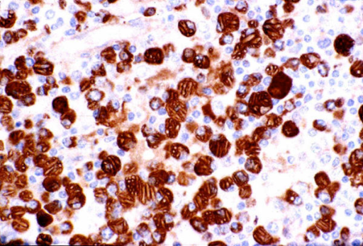 Immunohistochemical analysis Immunohistochemical staining shows the plasma cells to be IgG positive with kappa restriction pattern (medium power × 250)