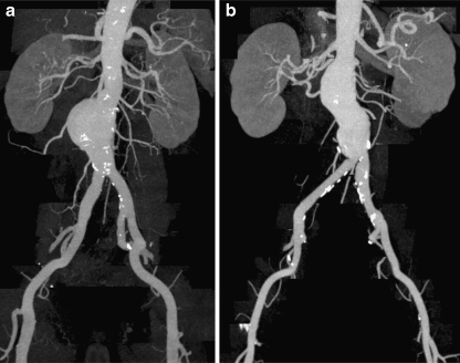 Two examples of abdominal aortic angiograms (maximum intensity projections, MIP) obtained during the administration of two contrast agents. The patient in a was examined during administration of 100 ml iobitridol 350 mgI/ml, and the patient in b received 100 ml iomeprol 400 mgI/ml. Regardless of the different total amounts of iodine, both MIPs show excellent and homogeneous arterial enhancement without visualised differences