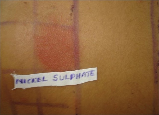 Strong patch test positive result to nickel sulfate