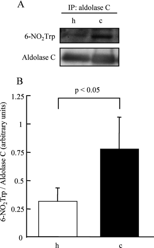 Comparison of the degree of tryptophan nitration of fructose-bisphosphate aldolase C betweenthe hippocampus and cerebellum(A) Representative results of Western blotting for anti-6-NO2Trp antibodyand anti-aldolase C antibody after IP with anti-aldolase C antibody. (B) The differencein the degree of tryptophan nitration between hippocampus and cerebellum measured by densitometry.h, hippocampus; c, cerebellum.
