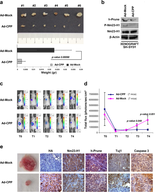 In vivo functional effect of CPP expression.(a) Representative explanted tumors. Tumor weight data are presented as means ± standard deviation. (b) Proteins extracted from tumor tissues were loaded onto acrylamide gels to evaluate the protein expression levels of phospho-Nm23-H1, Nm23-H1 and h-Prune. β-Actin was used as the loading control. (c, d) Two NOD/SCID mice groups were given intra-adrenal gland injections of SH-SY5Y-luc cells previously infected with Ad-Mock (7 mice) or Ad-CPP (7 mice). Tumorigenesis was followed by in-vivo bioluminescence photon emissions signals (IVIS Imaging System). Cells pre-infected with Ad-CPP showed impaired tumor growth, with respect to controls. (e) Photograph of resected tumors and representative images of the immunostaining for Ha-Tag, Nm23-H1, h-Prune, Tuj1 and Caspase 3.