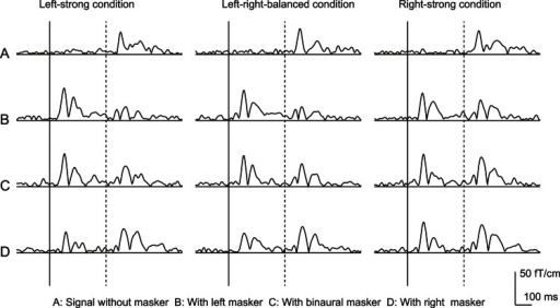 Square means of the responses at the channel where the maximum N1m amplitude was observed in a subject.The N1m amplitudes evoked by the signal decreased in the presence of the maskers. Solid and dashed vertical bars indicate the onset of masker and signal, respectively.