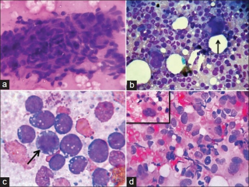 (a) Spindle cells with bland nuclei and mild pleomorphism suggestive of fibromatosis (MGG, ×400); (b) Adrenal myelolipoma showing hematopoietic elements (a megakaryocyte is shown by arrow) in a background containing lipid droplets (MGG, ×400); (c) Burkitt's lymphoma showing dense basophilic cytoplasm with vacuoles (arrow highlighting a mitotic figure) (MGG,×1000); (d) Pleomorphic dyscohesive spindle cells with giant cells (inset) in a case of pleomorphic sarcoma (MGG, ×400)