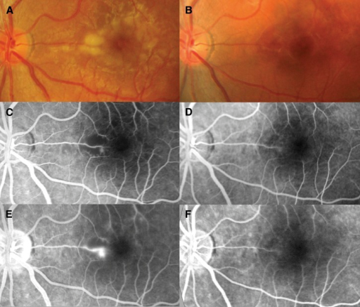 (A and B) Retinal photographs and (C and D, arterial phase; E and F, late phase) fluorescein angiograms of the left eye. On day 3, increased vessel thickness and tortuosity plus (A) patchy macular whitening with corresponding areas of (C) reduced perfusion and (E) fluorescein leakage were seen. On day 55, normal vessels, (B) no whitening, and (D) normal perfusion around the fovea with (F) no leakage of fluorescein were seen.