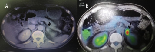 (A) CT performed 1 year after right adrenalectomy shows a left adrenal tumor (2.5×1.6 cm). (B) A PET/CT scan shows a moderate uptake in the tumor, with a maximum SUV of 6.0.