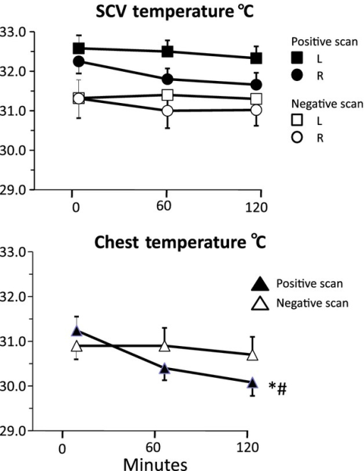 Mean (±SE) temperatures over the left (L) and right (R) supraclavicular areas (upper panel) and the anterior chest (lower panel) over 2 h of cooling at 19°C in an air‐conditioned room in subjects with positive and negative PET scans. *P <0.05 for fall in temperature with time; #P <0.05 for difference between PET‐positive and ‐negative groups.