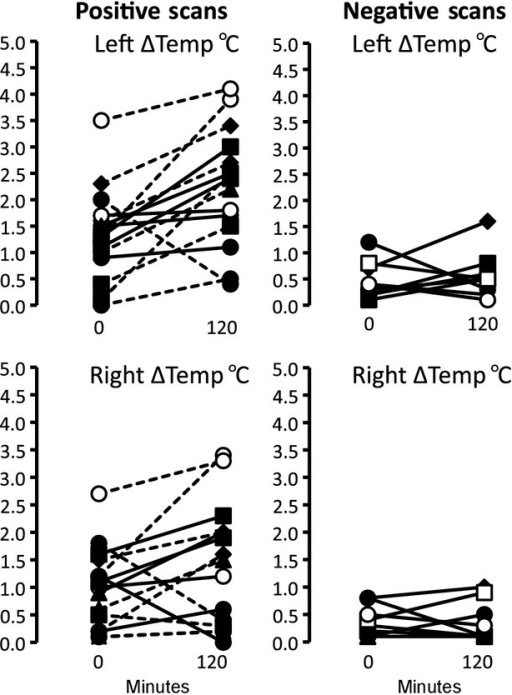 Upper panel shows Individual paired plots in PET‐positive (left panels) and PET‐negative (right panels) subjects studied before and after 2 h of cooling. The temperature difference (∆temp) between supraclavicular (left and right) and chest areas was measured. Each subject is denoted by a different symbol. The same symbols are used for subjects studied on a second occasion.
