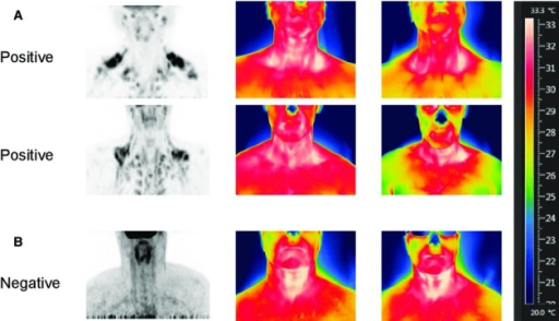 Representative PET‐CT and thermography images before and after 120‐min cooling for (A) two BAT‐positive subjects and (B) one BAT‐negative subject. In A, the thermograms for both PET‐positive subjects indicate that the skin temperatures in the SCVs are higher than the surrounding areas and with cooling, there is a fall in chest temperature as denoted by the color change. (B) Shows minimal difference in temperature between SCV and control chest areas. With cooling, there is no fall in chest temperature.