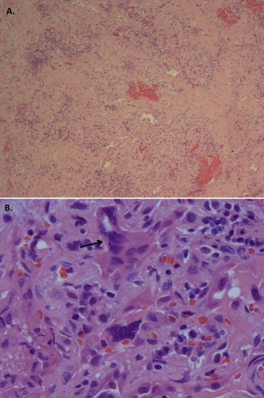Histology from VATS lung biopsy reveals A) marked fibrosis and chronic inflammation with B) giant cell reactions (hematoxylin-eosin, A.25× B.100×). An arrow shows a multi-nucleated giant cell.