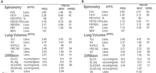A: PFT performed approximately 2 months after the initial hospitalization shows a severe obstructive and a moderate restrictive ventilation defect and moderately decreased DLCO. B: PFT performed approximately 4 months later shows a significant improvement with a mild restrictive ventilatory defect, resolution of the obstructive ventilatory defect and only a mildly reduced DLCO.